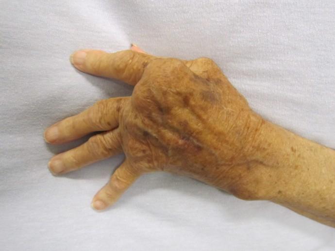 류마티스 관절염 환자의 손. 류마티스 관절염이 발생하면 염증으로 인해 혈액 내 백혈구들이 관절로 모여 들게 되고, 그 결과 관절이 부으면서 통증이 나타난다. - 위키미디어 제공